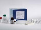 人细胞角蛋白18(CK-18)ELISA试剂盒
