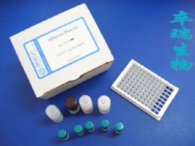 人可提取核抗原(ENA)Elisa试剂盒