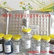 人抗骨骼肌抗体(ASA)ELISA Kit