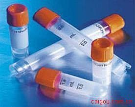 尾加压素Ⅱ(UⅡ)抗体