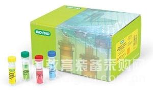 Rat interferon-inducible protein 16,IFI16/p16 ELISA Kit