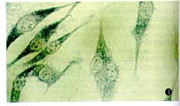 美国Sciencell 人乳腺癌细胞株 MDA-MB-435S