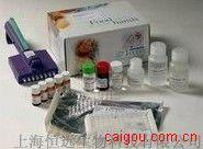 人精氨酸酶ELISA试剂盒