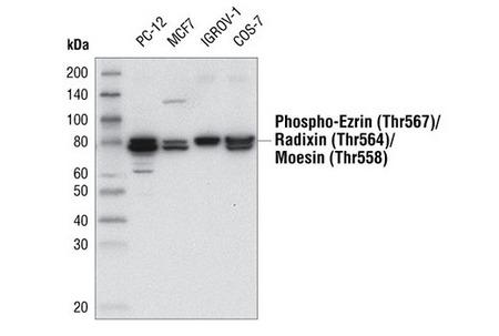 CST Phospho-Ezrin (Thr567)/Radixin (Thr564)/Moesin (Thr558) (48G2) Rabbit mAb #3726