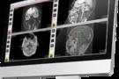 OsiriX MD医疗图像处理软件10.0版本已正式发布