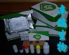 人抗单链DNA抗体/变性DNA抗体(ssDNA)Elisa试剂盒