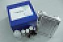 待测人γ谷氨酰转移酶(GGT)ELISA试剂盒价格