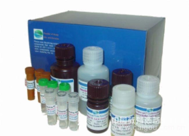 人去唾液酸糖蛋白受体(ASGPR)ELISA试剂盒