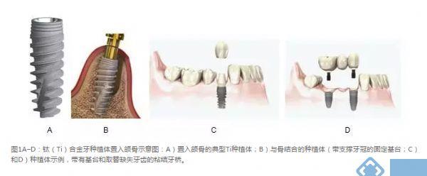 徕卡显微镜应用:种植体周围炎净化处理对牙种植体钛合金表面粗糙度和化学性质的影响:对骨整合的影响